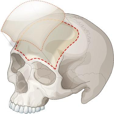 การผ่าตัดเสริมหน้าผากต้องใช้แผ่นซิลิโคนขนาดใหญ่