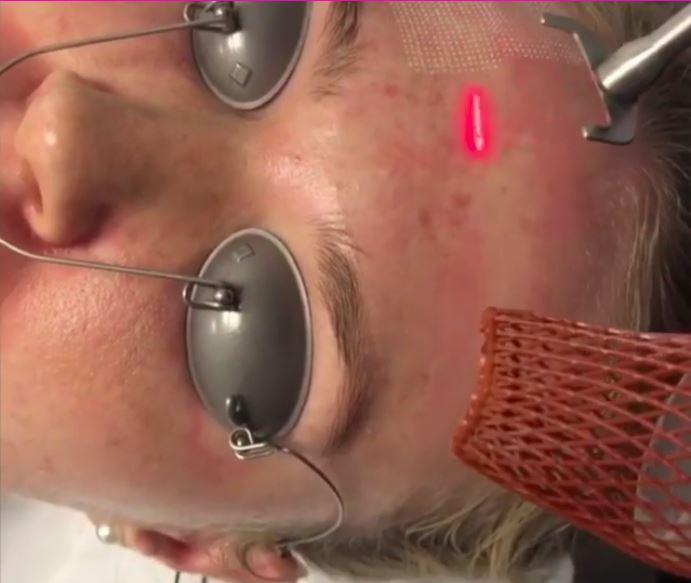 เลเซอร์หลุมสิว Fraxel Lasers