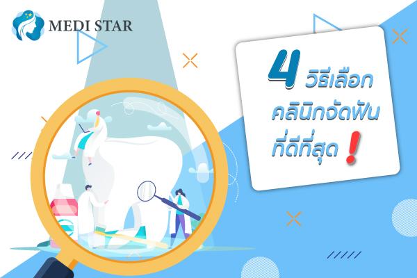 4-วิธีเลือกคลินิกจัดฟัน-ที่ดีที่สุด