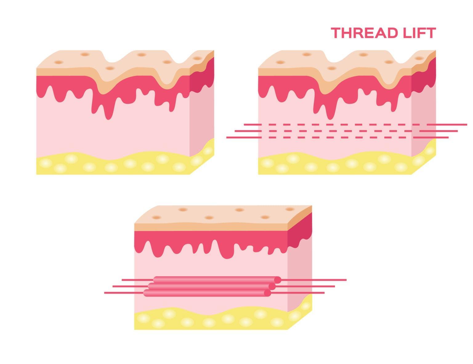 การร้อยไหมสามารถกระตุ้นการสร้าง-elastin