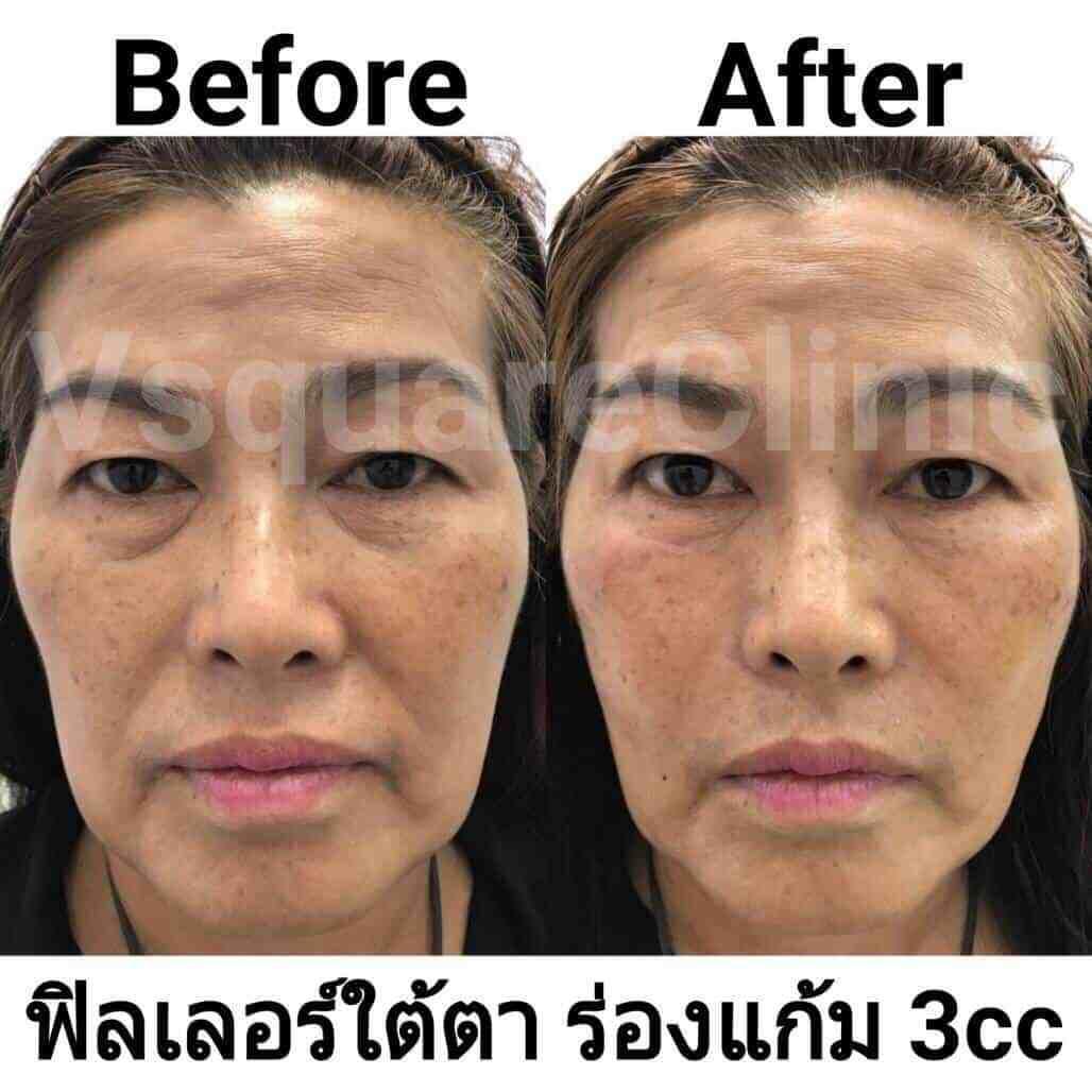 รูป ตัวอย่างรีวิว ผลการรักษาด้วยฟิลเลอร์ ใต้ตา+ร่องแก้ม 3 cc