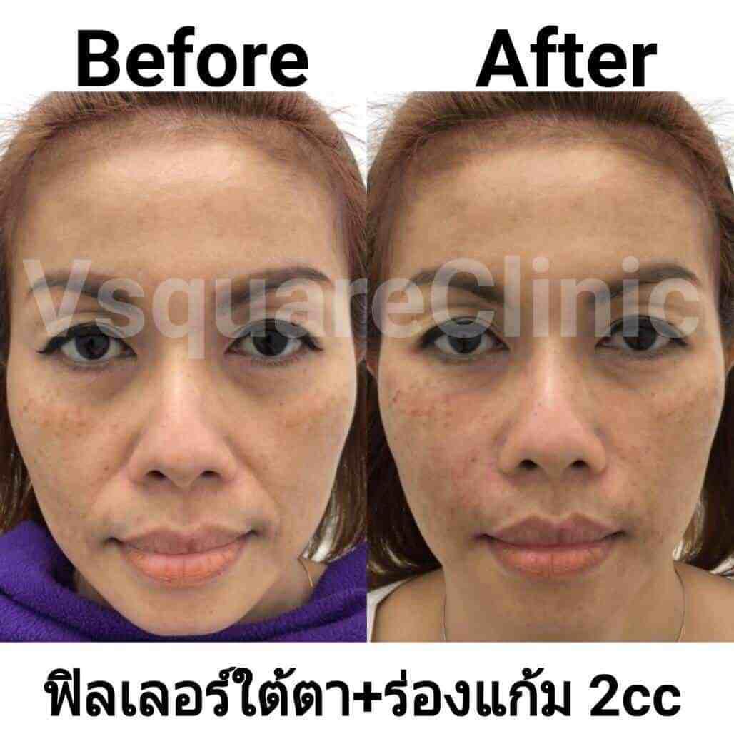 ตัวอย่างรีวิว ผลการรักษาด้วยฟิลเลอร์ ใต้ตา+ร่องแก้ม 3 cc