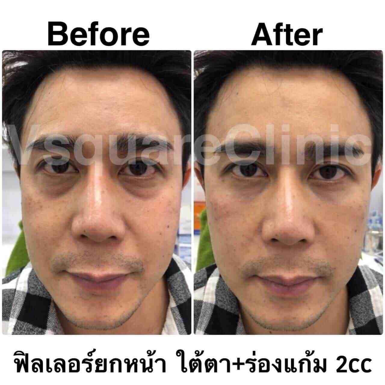 รูป ตัวอย่างรีวิว ผลการรักษาด้วยฟิลเลอร์ยกหน้า ใต้ตา+ร่องแก้ม 2 cc