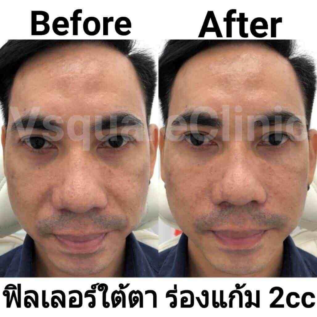 รูป ตัวอย่างรีวิว ผลการรักษาด้วยฟิลเลอร์ ใต้ตา+ร่องแก้ม 2 cc