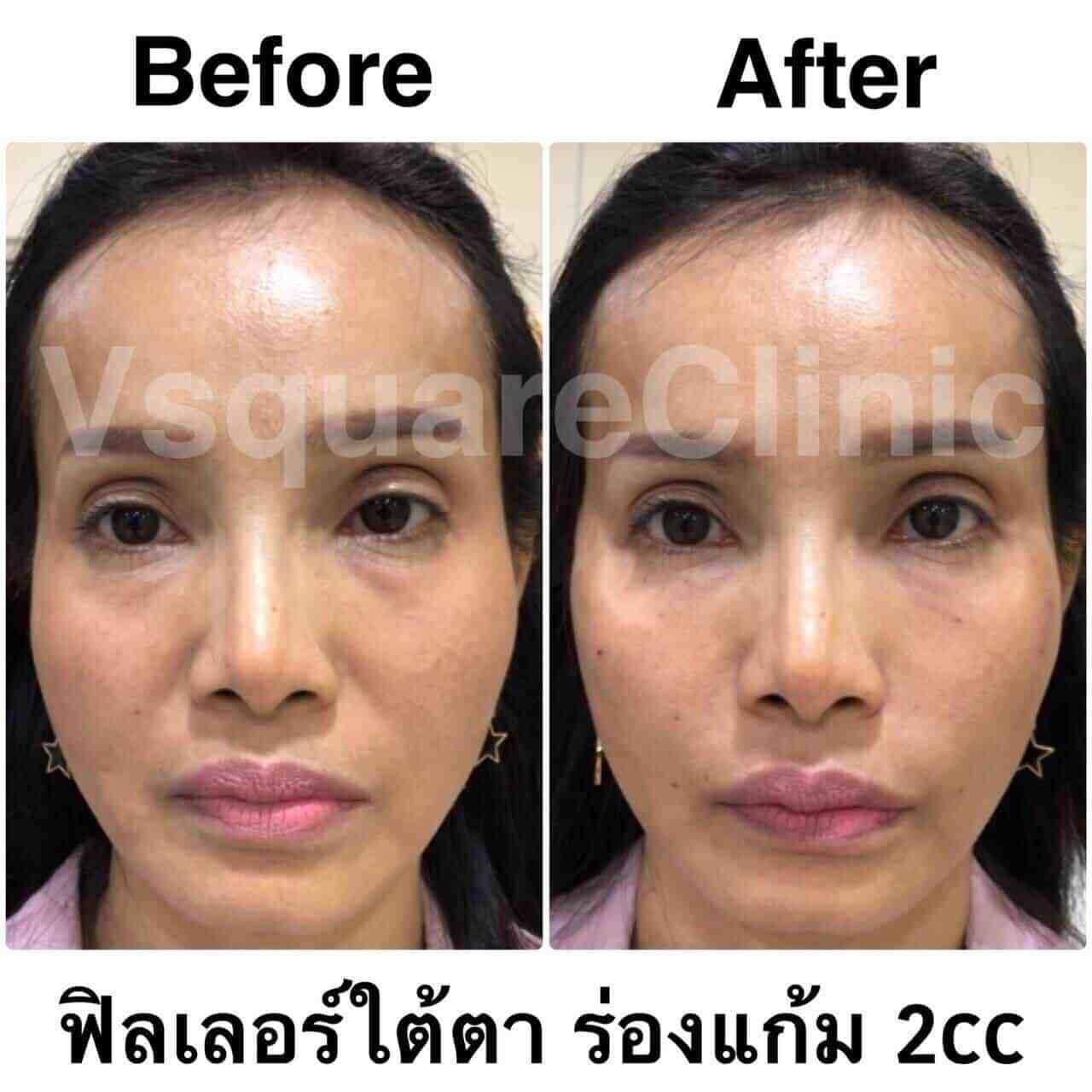 ตัวอย่างรีวิว ผลการรักษาด้วยฟิลเลอร์ยกหน้า ใต้ตา+ร่องแก้ม 2 cc
