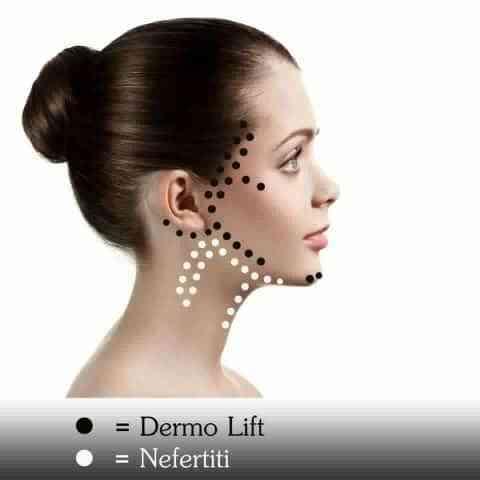 Dermolift vs Nefertiti lift