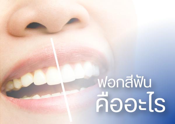ฟอกสีฟัน-ฟอกฟันขาว คืออะไร