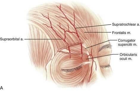 ฟิลเลอร์หน้าผาก-VS-ผ่าตัดเสริมหน้าผาก