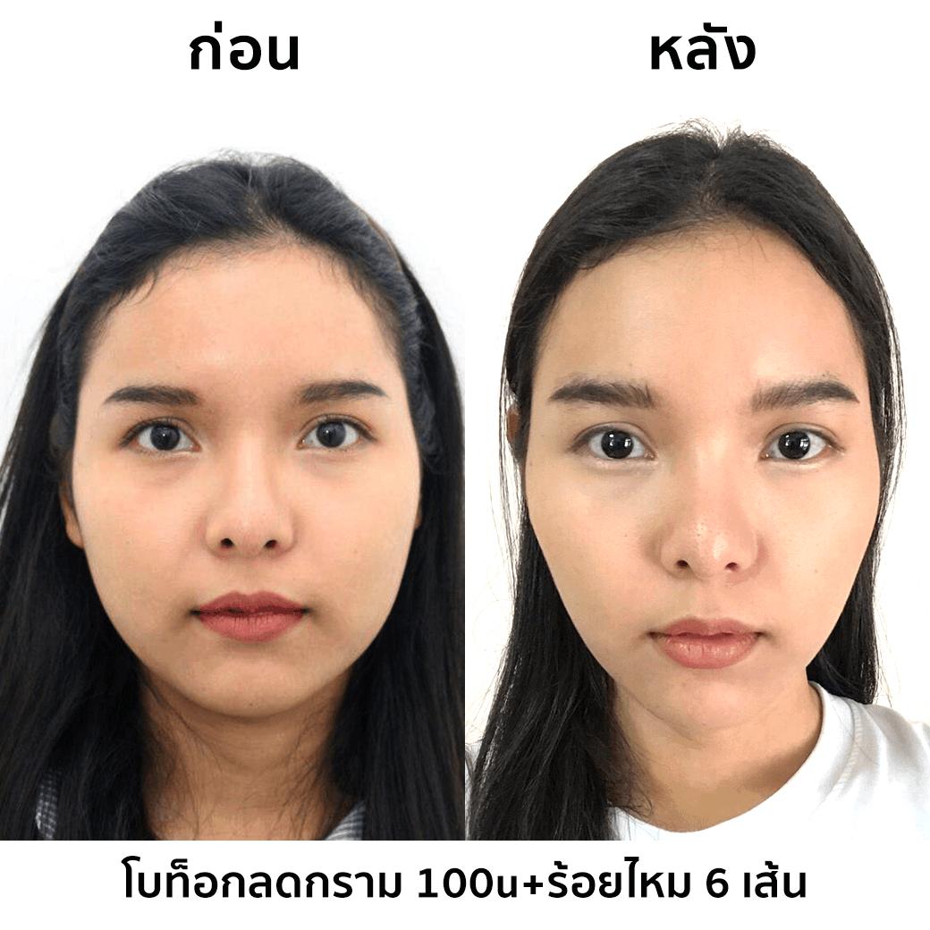 review-botox-6