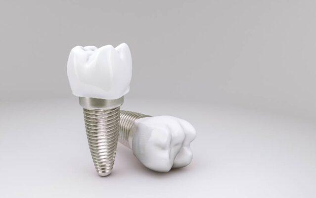 รากฟันเทียมมีกี่ชนิด ต่างกันยังไง ถึงสามารถเข้ากับกระดูกและเนื้อเยื่อของมนุษย์ได้ดี และไม่เสื่อมสภาพไปตามกาลเวลา